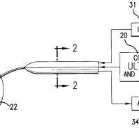 28 days of Black Inventions For Black History Month: Laserphaco Probe